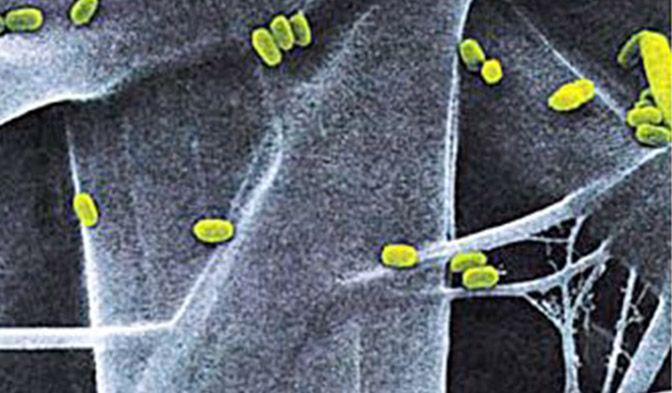DuPont™ Tyvek® está compuesto por fibras continuas que proporcionan resistencia inherente a la penetración microbiana.